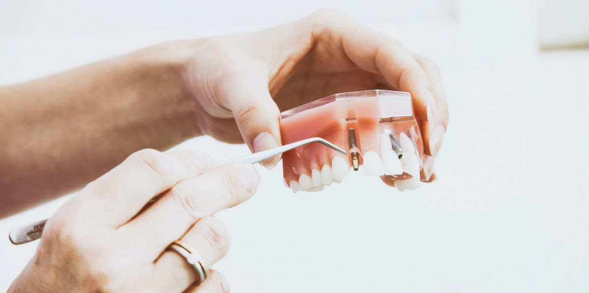 dental-implants-1200x597.jpg